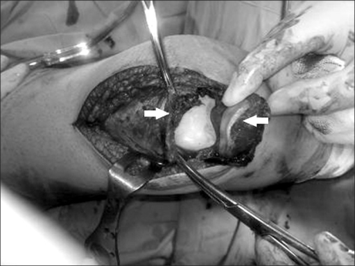 Intraoperative appearance of the ruptured quadriceps tendon (arrows).