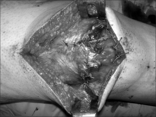 Ruptured quadriceps tendon was sutured using a Krackow technique.