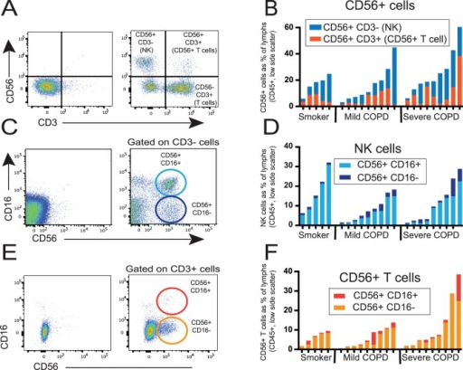 Identification and characterization of human lung NK cells and CD56+ T cells.Lung tissue was dispersed, stained with monoclonal antibodies against CD45, CD3, CD56, and CD16 and analyzed by flow cytometry to select a viable population comprised predominately of lung lymphocytes (CD45+, low side-scatter cells). (A, C, E) Representative staining: isotype controls on left, specific staining on right; (B, D, F) Frequency of various lung lymphocyte populations in individual subjects as a percentage of the total viable lung lymphocyte population; note difference in scale of panel B. (A) Ungated staining for CD3 and CD56 identifies four distinct populations: NK cells (CD56+ CD3−); CD56+ T cells (CD56+ CD3+); conventional T cells (CD56− CD3+); and double-negative cells (predominately B cells). (B) NK cells (blue bars) versus CD56+ T cells (orange bars). (C, D) After gating on CD3− cells, staining for CD56 and CD16 identifies two lung NK populations: CD56+ CD16+ (light blue circle & columns) and CD56+ CD16− (dark blue circle & columns). (E, F) After gating on CD3+ cells, staining for CD56 and CD16 identifies two lung CD56+ T cell populations: CD56+ CD16+ (dark orange circle & columns) and CD56+ CD16− (light orange circle & columns). By Kruskal-Wallis one-way ANOVA, there are no significant differences between subject groups for any of these three lung cell populations (B, D, F).