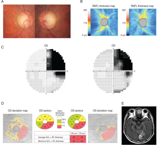 Analysis of a 77-year-old man showed increased cupping in his optic disc (A) and optical coherence tomography peripapillary retinal nerve fiber layer (RNFL) thickness map is shown in (B). His Ganglion cell thickness map showed a right inferior quadratic pattern of loss (C) and analysis of his visual field showed a right superior homonymous quadranopsia (D). A brain magnetic resonance imaging revealed a left posterior cerebral artery territory infarct (E). OD = right eye; OS = left eye; GCL = ganglion cell layer; IPL = inner plexiform layer.