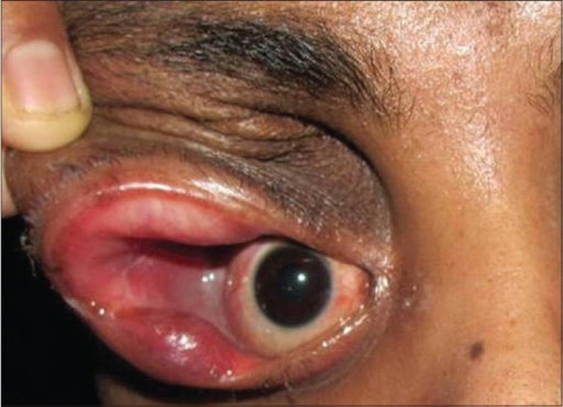 Post-operative pic of the patient showing complete excision of encephalocele with redundant eyelid