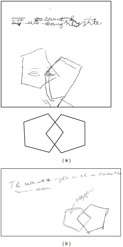 Writing/drawing samples from patient. A writing sample and attempt at copying the Folstein MMSE intersecting pentagon figure. The left panel shows an attempt at both in the absence of medication. The right panel shows subsequent improvement when taking zolpidem CR. The original figure from the Folstein document is reproduced above.
