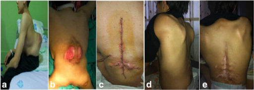 A-14-year-old male patient with congenital kyphosis due to meningomyelocele. a: lateral and b: posterior view of the patient showing infected skin ulcers at the apex of the deformity and patient was predicted as high risk for infection c: The wound at postoperative day 1. Prophylactic HBO was started after surgery. d: Lateral and e: posterior clinical presentation of patient at postoperative 24th month. Written informed consent was obtained from the patient for publication of Figure 1 images.