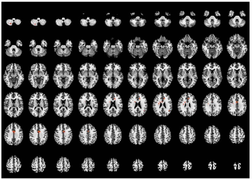 Brain regions activated by acupuncture stimulation at the sham point. Left side of the images is the right side of the brain. P < 0.05 (AlphaSim correction).