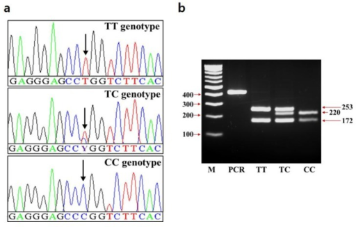Genotypes of the c.*2041T>C SNP in the 3′ UTR of the SCD gene. (a) Sequence chromatograms showing c.*2041T>C SNP. (b) The electrophoresis image of PCR-RFLP for c.*2041T>C SNP. Digestion of PCR products (425 bp) by MspI, show genotypes TT, TC, and CC. The arrowheads show and the size of DNA ladder and fragments. SNP, single nucleotide polymorphism; UTR, untranslated region; SCD, stearoyl-CoA desaturase; PCR-RFLP, polymerase chain reaction-restriction fragment length polymorphism.