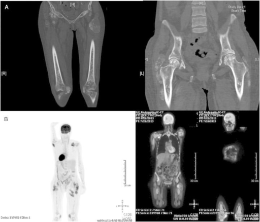 (A) Sclerosis of both distal and proximal femurs is evident. Note is also made of the tumorous soft-tissue calcification adjacent to both trochanters and at other sites. (B) Total-body PET-CT shows markedly increased glucose metabolism at numerous skeletal sites, particularly proximal and distal long bones and pelvis.