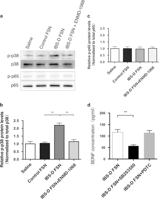 Phosphorylation of p38 MAPK but not p65 NF-κB signaling contributed to IBS-D fecal supernatants (FSN)-triggered BDNF expression in Caco-2 cells.(a b and c) Western blotting of phospho-p38, phospho-p65, total p38 and total p65 protein levels in Caco-2 cells. (d) ELISA analysis of BDNF levels in Caco-2 cells after treatment with IBS-D FSN, and preadministration of SB203580 or PDTC followed by IBS-D FSN stimulation (**P < 0.01). The gels were run under the same experimental conditions. Cropped gels/blots are presented (full-length gels/blots are shown in suppl. Fig. S1 with indicated cropping lines).