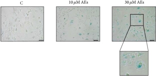 Chronic treatment of AEs induces cell senescence. MDA-MB231 cells were treated with low doses of AEs (10 and 30 μM) for 10 days and then analyzed for the SA-β-gal, senescence-associated β-galactosidase activity. The image shown is representative of at least three independent experiments. Scale bar: 50 μm. The senescent cells versus total cells were counted in random fields under an inverted microscope (20x) and the following data are the mean ± SD: C = 7.7 ± 0.5, 10 μM AEs = 31 ± 5.6, p = 0.0044∗∗, 30 μM AEs = 51 ± 6.6, p = 0.0005∗∗∗. Significant statistical differences are indicated by asterisks. Boxed area, regarding blue cells with a typical senescent flattened and enlarged morphology, is magnified (2x).