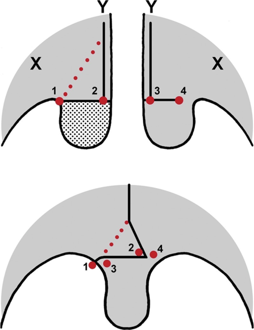 Surgical technique for uvula repair in patients with cleft palate using one hemi-uvula. Dotted line: Line of incision to remove a triangle from the edge of the nasal mucosa. Point 1: The lateral point at the base of the excised uvula. Point 2: The medial point at the base of the excised uvula. Point 3: The medial point at the base of the preserved uvula. Point 4: The lateral point at the base of the preserved uvula. Point X: Maxillary tuberosity. Point Y: Hard and soft palate junction.