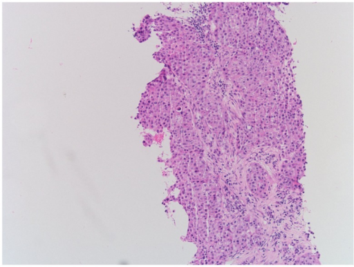 Hematoxylin-eosin staining of left supraclavicular lymph node demonstrating recurrent NSCLC.
