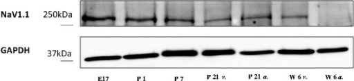 Analysis of SCN1A protein expression. In contrast to rtPCR results, Western blot analysis of SCN1A protein expression showed a progressive decline with postnatal development (upper panel). As a control, protein expression of GAPDH showed no changes with development (lower panel; abbreviations as depicted in Figure 1).