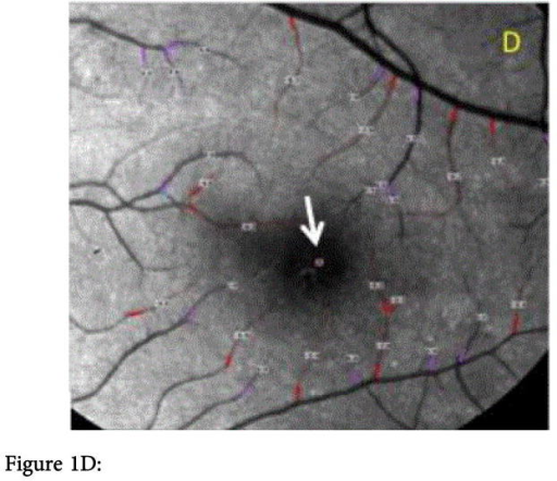 Figure 1A: Bulbar conjunctiva of the left eye imaged in a 50 degrees red-free mode with the RFI. Temporal conjunctiva of the patients left eye with microangiopathy of the conjunctival vessels (red dashed-square): microaneurysms (orange arrow is indicating one of them), vessel dilatation (blue arrows), and vascular tortuosity (yellow arrow).Figure 1B: Bulbar conjunctival capillary perfusion map (nCPM). Note the microvasculature visualization enhancement showing the microvasculature anatomy in detail, otherwise invisible even in the sharpest red-free image (Figure 1A). The microvasculature anatomy appeared unevenly distributed.Figure 1C: Analysis of the BF velocity of the conjunctiva. The positive values with the purple lines are representing the veins, the negative values with the red lines are representing the arteries, the numbers are the BF velocity in mm/s. Values in the area with the red-dashed square are representing the BF data of the area with the vascular abnormalities. The symbol on the cornea (white arrow) marks the direction of the arterial BF.Figure 1D: Analysis of the BF velocity of the central retina imaged in a 20 degrees red-free mode. Note that the positive values with the purple lines are representing the veins, the negative values with the red lines, which indicate BF moving away from the heart, are showing the arteries. The numbers closed to vessel segments outlined are the mean BF velocity in mm/s. The avascular zone was evident in the fovea. The symbol in the fovea (white arrow) is indicating the direction of the arterial BF. Note that no clinical signs of DR are present.Figure 1E: Bulbar conjunctiva of a human healthy's left eye imaged in a 50 degrees red-free mode with the Retinal Function Imager.Figure 1F: Bulbar conjunctival capillary perfusion map (nCPM) of the same human healthy eye (Figure 1E). Note the microvasculature visualization enhancement showing the microvasculature anatomy in detail, otherwise invisible even in the sharpest red-free images (Figure 1E). The microvasculature anatomy appeared evenly distributed and lower number of blood vessels along with lower degree of complexity of their branching patterns increased density and complexity is evident when compared with the diabetic eye (Figure 1B).