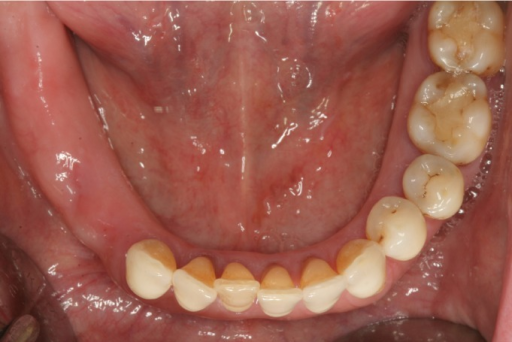 Occlusal preoperative view.