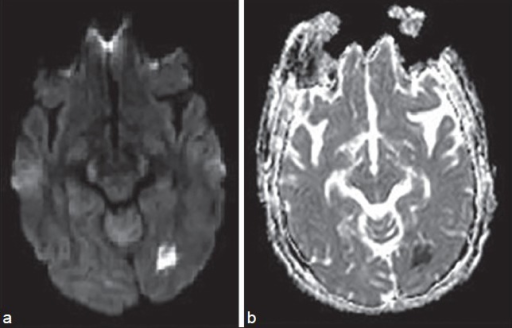 Apparent diffusion coefficient and diffusion-weighted (b = 800 s/mm2) image showing acute infarct in the left occipital region. (b) Apparent diffusion coefficient and diffusion-weighted (b = 800 s/mm2) image showing acute infarct in the left occipital region