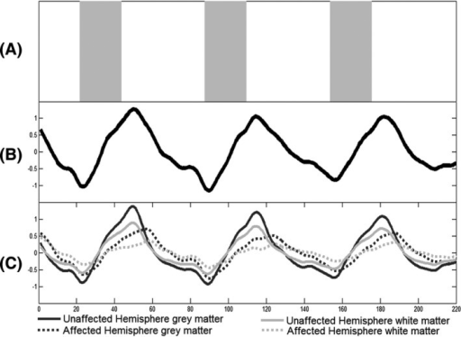 Breath‐hold paradigm and BOLD time series. (A) Breath‐hold paradigm presented as a taskbar. The gray blocks indicate the three breath hold periods of 22 TR (44 sec). The white blocks, amidst, represent the resting periods of 44 TR each, except for the first one: 22 sec. Total duration of this protocol is 7:20 min. (B) Illustrative whole brain combined gray and white matter BOLD time series of one subject. The time series is displayed over the period of 220 repetition times (TR) (440 sec). (C) Hemispheric mean BOLD time series of gray and white matter. The time courses of the unaffected hemisphere are illustrated with a bold line, whereas the affected hemisphere time courses are displayed with a dotted line. The dark lines indicate gray matter, whereas gray lines indicate the white matter. As expected, the unaffected hemisphere reacts to a greater extent to the given stimulus than the affected hemisphere, as does the gray matter compared to the white matter. The time to reach signal maximum is also faster in the unaffected hemisphere, which results in different phase between hemispheres.