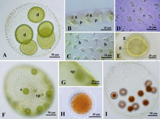Light microscopy of Volvox sp. Sagami strains 13-614-Vx13 (A-C), 13-614-Vx15 (D-G) and 14-614-Vx04 (H and I). (A) Asexual spheroid with daughter colonies (d). (B-E) Part of asexual spheroids. (B) Side view of anterior cells, showing elongate-ellipsoidal or spindle cell shape, stigma (s) and pyrenoid (p) in the chloroplast. (C) Top view of somatic cells interconnected by cytoplasmic bridges (b). (D) Optical section of top view of cells surrounded by individual sheaths (asterisks). Stained with methylene blue. (E) Optical section of developing embryo during late stage of inversion. Note that gonidia (g) of the next generation are evident. (F) Monoecious sexual spheroid with eggs (e) and sperm packets (sp). (G) Side view of sperm packet (sp) in monoecious sexual spheroid. (H) Mature zygote with short and acute spines developing on the walls. (I) Sexual spheroid with mature zygotes.