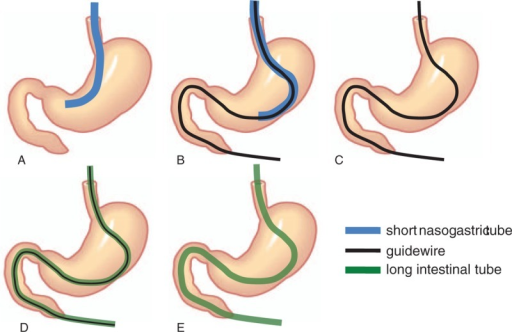 Procedure of LT insertion using nonendoscopic over-the-wire method via short nasogastric tube (NEWSt). (A) A short nasogastric tube (NGT) is placed in the stomach before NEWSt. (B) A Dennis guidewire (1.32 mm, 500 cm long; Covidien, Tokyo, Japan) is inserted via NGT as distally as possible beyond the duodenojejunal flexure under fluoroscopy guidance. (C) The NGT is withdrawn while the guidewire is kept in place. (D) A hydrophilic long tube (16 Fr, 300 cm; Argyle Super Dennis Tube; Covidien, Tokyo, Japan) is inserted along the guidewire. (E) The guidewire is withdrawn. LT = long intestinal tube.