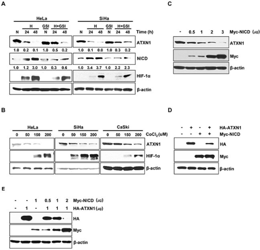 NICD downregulates ATXN1 expressionA. HeLa and SiHa cells cultured under normoxic or hypoxic conditions for 24 and 48 h in the absence or presence of the γ-secretase inhibitor GSI-DAPT were subjected to a western blotting analysis of ATXN1 expression. Densitometry results of ATXN1 are shown below each lane. ATXN1 expression was normalized to β-actin levels. Numbers indicate the intensity ratio relative to each control lane (1.0) B. HeLa, SiHa, and CaSki cells were treated with the indicated concentrations (μM) of CoCl2 for 24 h, and lysates were analyzed via western blotting with the indicated antibodies. C. HeLa cells transfected with Myc-NICD were subjected to western blotting analysis. D. Western blotting analysis of HEK293 cells co-transfected with HA-ATXN1 and Myc-NICD. E. Western blotting analysis of HEK293 cells co-transfected with HA-ATXN1 and the indicated amounts of Myc-NICD DNA. H (Hypoxia), N (Normoxia), GSI (γ-secretase inhibitor).