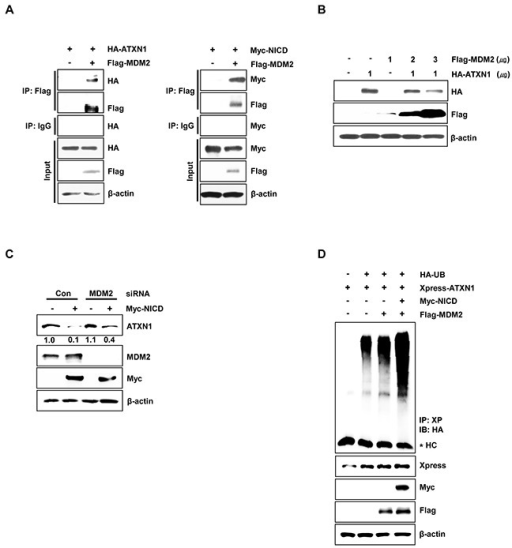 MDM2 promotes ubiquitination and degradation of ATXN1A. Left panel: HEK293 cells were co-transfected with HA-ATXN1 and Flag-MDM2. After transfection, cell lysates were immunoprecipitated with an anti-Flag antibody and subjected to western blotting. Right panel: HEK293 cells co-transfected with Myc-NICD and Flag-MDM2 were lysed, and the lysates were immunoprecipitated with an anti-Flag antibody and subjected to western blotting analysis. B. Western blotting analysis of HEK293 cells co-transfected with HA-ATXN1 and Flag-MDM2. C. Western blotting analysis of SiHa cells transfected with Myc-NICD in the presence or absence of MDM2 siRNA to determine the expression of Myc-NICD and MDM2. ATXN1 expression was normalized to β-actin levels. Numbers indicate the intensity ratio relative to the control lane (1.0). D. HEK293 cells were co-transfected with Myc-NICD, Flag-MDM2, and Xpress-ATXN1, with or without HA-Ub, and treated with MG132 for 6 h. ATXN1 was immunoprecipitated using an anti-Xpress antibody. Cell lysates were subjected to western blotting analysis with the indicated antibodies. HC represents the IgG heavy chain. IP (Immunoprecipitation), IB (Immunoblot), Xp (Xpress), HC (Heavy chain), Con (Control).