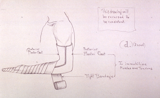 <p>Illustration showing plaster cast and bandage used to immobilize muscles and tendons in the arm and wrist after repair of severed tendon.</p>