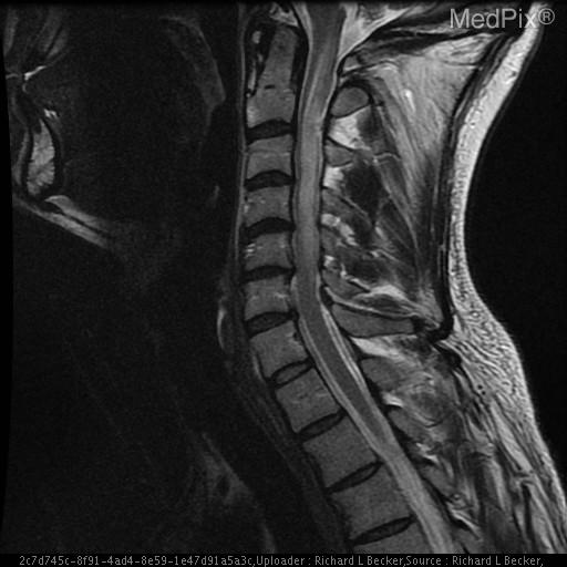 An area of increased T2 signal within the cervical spinal cord from the level of C1 to C5, tapering at each end, with thickening of the spinal cord in this region.