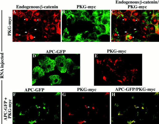 Overexpression of plakoglobin causes the accumulation of endogenous β-catenin in the nucleus and the redistribution of  APC–GFP. Human plakoglobin was overexpressed in animal cap cells, and the distribution of both endogenous β-catenin (A and C)  and myc-tagged plakoglobin (B and C) was determined by confocal microscopy. Cells expressing ectopic plakoglobin possess high levels  of endogenous β-catenin in the nucleus (arrowheads in A and C) when compared to cells not expressing ectopic plakoglobin (arrows in  A and C). Overexpression of plakoglobin also results in the redistribution of APC–GFP within the cell to sites of plakoglobin accumulation. The localization of APC–GFP (D) and ectopic plakoglobin (E) in the absence of other RNAs demonstrates the different localization patterns of the two ectopic proteins. Coinjecting APC–GFP and plakoglobin, however, results in the redistribution of APC–GFP  (F) to a pattern indistinguishable from that seen for ectopic plakoglobin (G). Overlapping APC–GFP (F) and plakoglobin (G) staining  appears as yellow staining in the merged image (H). Arrows mark examples of APC–GFP and plakoglobin colocalization.