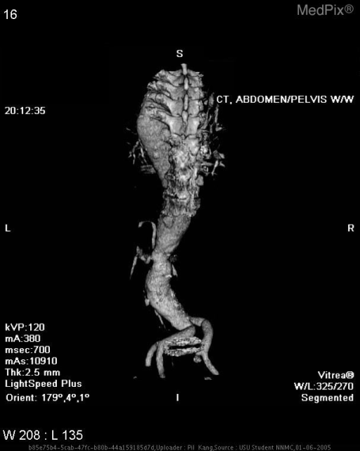 Infrarenal abdominal aortic aneurysm. Volume rendered images show only the opacified lumen.  The mural thrombus and calcified wall of the aorta are not shown.