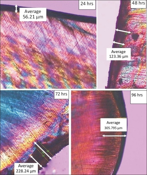 The polarization microscopic images of the demineralized tooth specimens