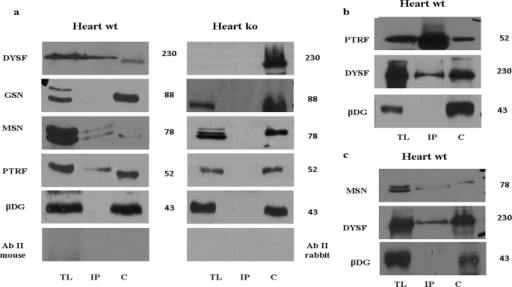 Dysferlin associates with MSN and PTRF in vivo. a, heart muscle homogenates from wt and diseased mice were immunoprecipitated with a monoclonal antibody to Dysferlin (dysf). Immunoprecipitated complexes were separated on SDS-PAGE gels and immunoblotted. Dysferlin precipitates were blotted forDYSF, MSN, PTRF, GSN, and βDG. Immunoblots were also probed with secondary antibodies alone to exclude nonspecific bands. A muscle lysate from a healthy subject was used as internal positive control. b and c, BL10 heart muscle homogenates were immunoprecipitated with a polyclonal antibody to PTRF (b) and with a monoclonal antibody to MSN (c). Immunoprecipitated complexes were separated on SDS-PAGE gels and immunoblotted. PTRF precipitates were blotted for PTRF, DYSF and βDG (b). MSN precipitates were blotted for MSN, DYSF, and βDG (c). A muscle lysate from a healthy subject was used as internal control. TL: total lysate, IP: immunoprecipitation, C: control. Black lines were introduced when more separate gels were used. The results are representative of at least three independent experiments.