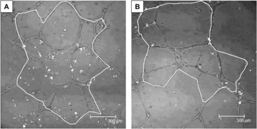 Tubule formation assay in healthy controls (A) and PCOS (B) patients.Panels A and B are representative pictures of the tubule network formed by the VPC (white dots) and HUVECs. The white line represents the surface area which was measured i.e. area formed by complete closed tubes.