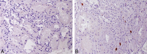 Renal macrophage infiltration. (A) The absence of macrophages in a preserved area of the cortex, and (B) macrophages within areas of interstitial fibrosis (A and B: objective 40x).