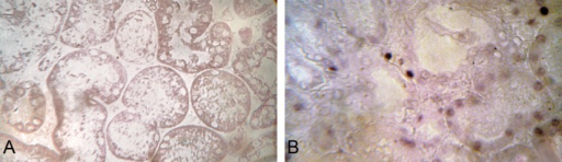 Southwestern histochemistry for NF-kB expression. (A) The absence of staining and (B) moderate-to-intense staining in the tubular compartment (A and B: objective 40x).
