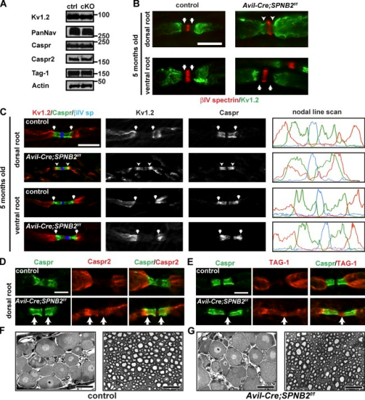 Loss of βII spectrin disrupts paranodal membrane barriers. (A) Immunoblot analysis of dorsal roots using antibodies against nodal, paranodal, and juxtaparanodal proteins. (B) Immunostaining of 5-mo-old dorsal and ventral roots from control and Avil-Cre;SPNB2f/f mice using antibodies against Kv1.2 and βIV spectrin. Control axons have a pronounced paranodal gap in immunoreactivity between Kv1.2 and βIV spectrin (arrows), but βII spectrin–deficient axons have paranodal Kv1.2 (arrowheads) that is directly adjacent to nodal βIV spectrin staining. Bar, 10 µm. (C) Immunostaining of 5-mo-old dorsal and ventral roots shows overlap between caspr and Kv1.2 in Avil-Cre;SPNB2f/f dorsal roots. Line scans of immunofluorescence intensity for the depicted nodes are shown at the right. Kv1.2 is shown in red, caspr in green, and βIV spectrin is shown in blue. Bar, 10 µm. (D) Immunostaining of dorsal roots shows juxtaparanodal Caspr2 (red) is excluded from Caspr-labeled paranodes (green) in control but not Avil-Cre;SPNB2f/f (cKO) mice. Bar, 5 µm. (E) Immunostaining of dorsal roots shows juxtaparanodal TAG-1 (red) is excluded from Caspr-labeled paranodes (green) in control but not cKO mice. Instead, TAG-1 can be found at both paranodes and nodes. Bar, 5 µm. (F and G) Toluidine blue–stained dorsal root ganglia and dorsal roots from control (SPNB2f/f) and Avil-Cre;SPNB2f/f mice show no signs of neurodegeneration. Bars, 20 µm.