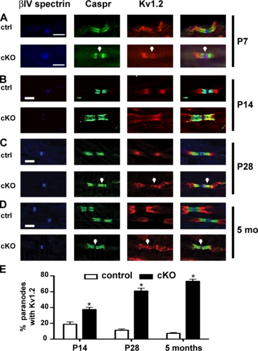 Paranodal Kv1 K+ channel staining increases with age in βII spectrin–deficient axons. (A–D) Nodes of Ranvier, paranodes, and juxtaparanodes from control (ctrl) and Avil-Cre;SPNB2f/f (cKO) dorsal roots immunostained using antibodies against βIV spectrin (blue), Caspr (green), and Kv1.2 (red), respectively. Immunostaining was performed at postnatal day P7 (A), P14 (B), P28 (C), and at 5 mo of age (D). Arrows indicate aberrant localization of Kv1.2 in nodes (A and D) and paranodes (B and C). Bars, 5 µm. (E) Quantification of the percentage of paranodes with Kv1.2 immunoreactivity as a function of age. Error bars indicate ± SEM. *, P < 0.01.