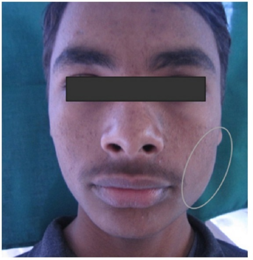 Diffuse swelling at the angle of left side of mandible.