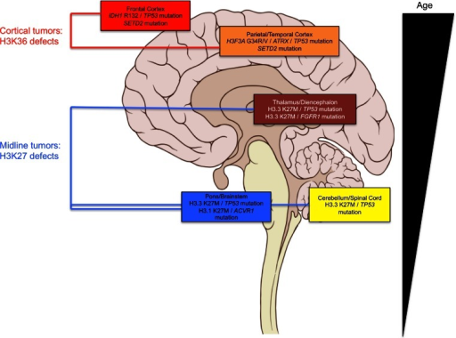 Molecular subgroups of pediatric high-grade gliomas show neuroanatomical preferences. Schematic representation of a sagittal view of the human brain depicting neuroanatomical areas with observed alterations discussed herein. Age of patients harboring these alterations is represented at the right