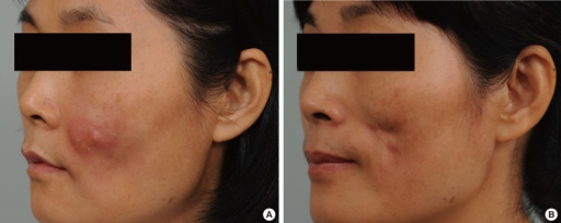 Case 3A 50-year-old woman who underwent autologous fat grafting on her cheek showed erythematous nodules and purulent discharge. (A) Before treatment. (B) Six months after treatment.