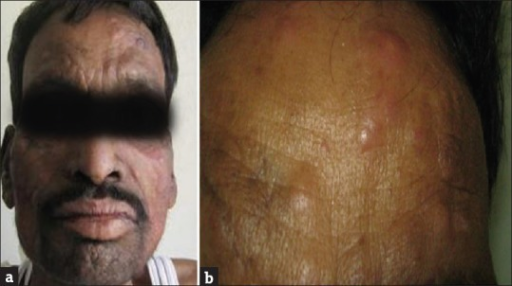 Multiple erythematous papules and nodules (ENL lesions) over face (a) and forehead (b)