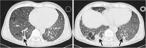 Chest CT image performed one day after the whole lung lavage showing newly multi-nodular consolidations (black arrow) and patchy opacities in both posterior segments of lower lobes.