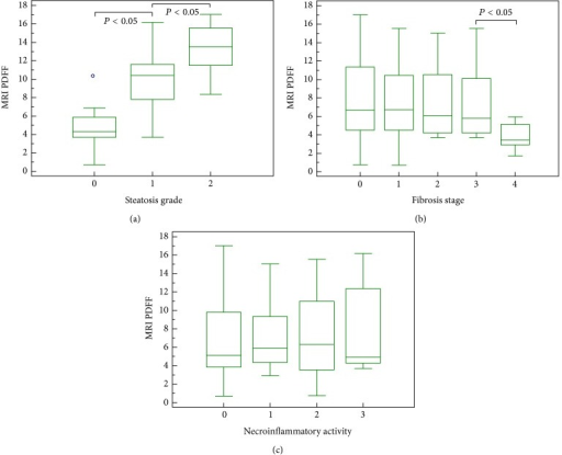 Box-and-whisker plots for MRI PDFF measurements in relation to each grade of steatosis (a), fibrosis (b), and necroinflammatory activity (c). The top and the bottom of the boxes are the first and third quartiles, respectively. The length of the box represents the interquartile range including 50% of the values. The line through the middle of each box represents the median. The error shows the minimum and maximum values (range). An outside value (separate point) is defined as a value that is smaller than the lower quartile minus 1.5 times the interquartile range or larger than the upper quartile plus 1.5 times the interquartile range.