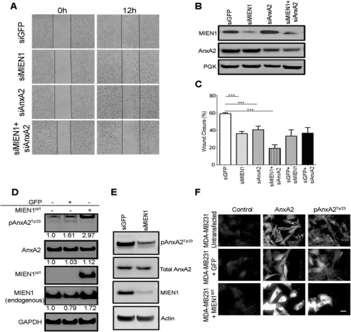 MIEN1 activates translocation of AnxA2 to plasma membrane to promote breast cancer cell migration. a Control and MIEN1 transfected MDA-MB231 cells were subjected to western blot analysis with anti-MIEN1 or anti-AnxA2 antibody. PGK served as a loading control. b Down-regulation of MIEN1 and AnxA2 reduces the abilities of MDA-MB231 breast cancer cells to migrate in vitro. Confluent MDA-MB231 monolayers transfected with control GFP, AnxA2 or/and MIEN1 were wounded using a pipet tip, 60 h after transfection. Following the wound formation, plates were incubated for 12 h and the wound closure areas were visualized on an Olympus Microscope (Carl Zeiss). Representative images were acquired at 0 and 12 h. c Quantification of cell migration was achieved using Image J software. Data are presented as percentages of the recovered scratch area relative to untreated control cells. Columns are the means five replicates from two independent experiments and bars are s.d. d MDA-MB231 and MDA-MB231 cells stably transfected with control GFP or GFP-MIEN1WT were subjected to western blot analysis with anti-phosho AnxA2, anti-AnxA2 and anti-MIEN1 antibodies. GAPDH served as a loading control. The quantification of the representative blots is the densitometric average of three independent experiments analyzed using ImageJ and normalized to GAPDH. e Control and MIEN1 transfected MDA-MB231 cells were subjected to western blot analysis with anti-phosho AnxA2, AnxA2, anti-MIEN1 and actin as loading control. f Representative images, as captured using a 60X oil immersion TIRF microscope, of MDA-MB231 and MDA-MB231 cells stably transfected with GFP-MIEN1WT grown to sub-confluence on coverslips, fixed with PFA, unpermeabilized, and processed for TIRF microscopy with the specific antibodies. At least three independent fields were analyzed for confirmation of the staining pattern represented. Scale bar denotes 20 μm