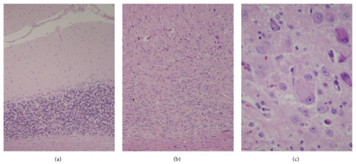 The surgical resection specimen includes a region of almost normal cerebellar parenchyma (a), with a normal granule cell layer that consists of fairly densely packed small neurons that are seen as blue nuclei separated by synaptic zones that are pink. The normal single layer of large Purkinje cells is located at the interface with the low cellularity molecular layer, here minimally more cellular than usual. Compare this with the images of the lesion (b and c). (b) The cerebellar granule cell layer in this region of the lesion is dysmorphic. Granule cells are scant and dispersed among ganglionic cells of varying sizes that expand this layer. (c) Detail of a region featured in upper right quadrant of panel (b) highlights the variable size of the abnormal ganglionic neurons characterized by relatively abundant cytoplasm and large nuclei with prominent nucleoli, some with abnormal irregularly shaped nuclei, that replace and expand the granule cell layer (hematoxylin and eosin paraffin sections; original magnifications: (a) 100x, (b) 200x, and (c) 400x).