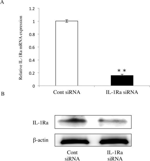 Suppression of IL-1Ra expression using siRNA.(A) Determination of IL-1Ra mRNA levels using real-time PCR. At 48 hours after transfection, IL-1Ra siRNA-transfected cells showed clear knockdown of IL-1Ra mRNA compared with the control. Differences among groups were analyzed using the Student's t-test. Data are expressed as the mean ± SD (n = 6). **p < 0.01 vs control. (B) Western blot of IL-1Ra (18 KDa) in cells transfected with either IL-1Ra or control siRNAs (n = 3). Data are representative of three independent experiments.