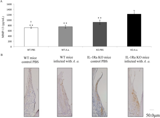 Expression and localization of MMP-13 in periodontal tissue of IL-1Ra KO and WT mice.(A) At 4 weeks after infection, the mouse gingival epithelial layer was collected to examine MMP-13 levels. The levels of MMP-13 were measured by an ELISA. Differences among groups were analyzed by one-factor ANOVA and Bonferroni's multiple comparison test. Data are expressed as the mean ± SD (n = 4). **p <0.01 vs IL-1Ra KO mice infected with A. actinomycetemcomitans. †p <0.05 vs IL-1Ra KO mice treated with PBS. (B) Localization of MMP-13 in periodontal tissue. Buccolingual sections of the second and third mandibular molars from A. actinomycetemcomitans-infected IL-1Ra KO and WT mice were stained immunohistochemically. In contrast to infected WT mice, immunohistochemical findings in periodontal tissues indicated considerable inflammatory reactions in IL-1Ra KO mice infected with A. actinomycetemcomitans.