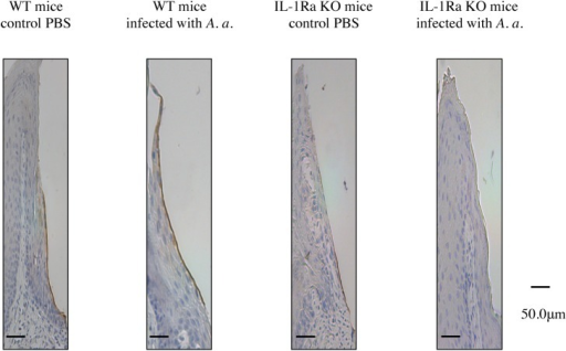 Localization of laminin-5 in periodontal tissue of IL-1Ra KO and WT mice.Buccolingual sections of the second and third mandibular molars from A. actinomycetemcomitans-infected IL-1Ra KO and WT mice were stained immunohistochemically. In contrast to IL-1Ra KO mice, positive reactions were evident in the internal basal lamina of WT mice.