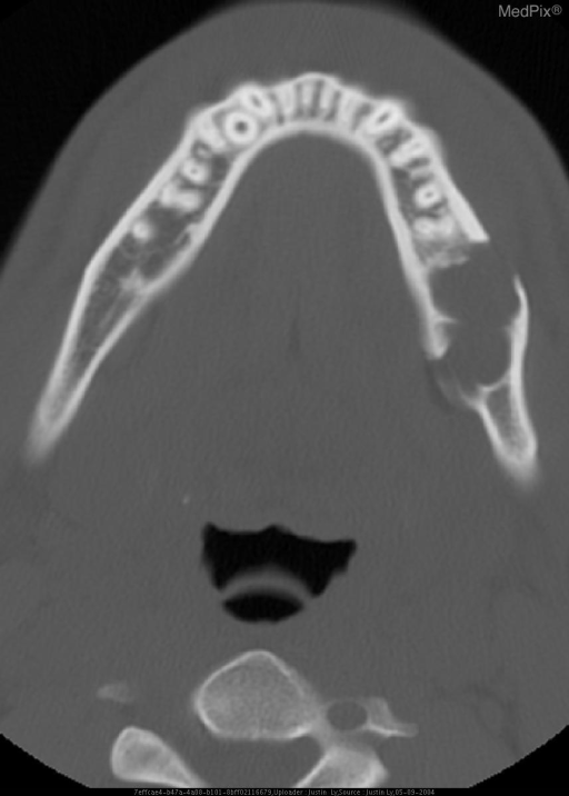 Axial and Coronal noncontrast CT images show a circumscribed, multiloculated lytic lesion at the left posterior molar region of the mandible.  Notice the cortical disruption at the anterior aspect of the lesion, best seen on the axial image.