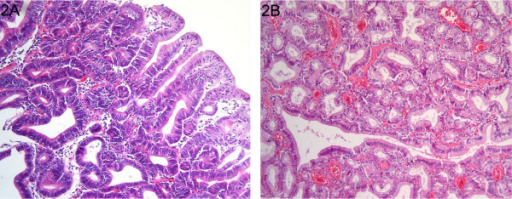 Haematoxilin and eosin staining (original magnification ×400) of intestinal-type (A) and pyloric gland (B) gastric adenomas. A. Intestinal-type adenoma of the stomach composed of irregularly arranged glands composed of intestinal-type epithelium with eosinophilic cytoplasm and enlarged nuclei. B. Pyloric gland adenoma of the stomach composed of densely back to back packed glands consisting of cells with pale cytoplasm and small round hyperchromatic nuclei.