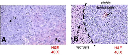 [A] Normal hepatocytes (a) and hepatoma cells (b). [B] Over 60% of field is occupied by perivascular (v) viable tumor cells; the left side is occupied by necrosis with cellular debris (c).