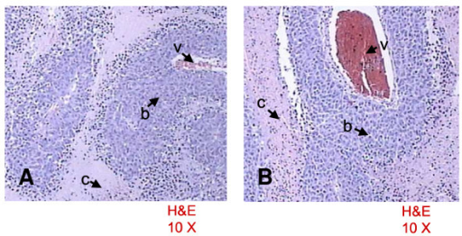 Representative histologic specimens of the liver after PEI [A] and PAI [B]. Perivascular (v) viable tumor cells (b) and necrosis with cellular debris (c).