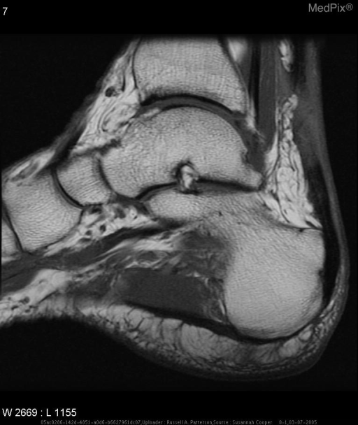 Sagittal T1-weighted MR image shows heterogeneous thickened Achilles tendon. This region became heterogeneously high signal intensity on STIR and T2-weighted and PD-density with fat sat MR images. These findings are consistent with a tear.